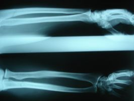 Arm X-Rays 6785645 by StockProject1