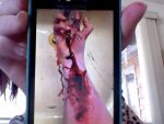 Picture of a picture of a wound by DarknessWhisperer