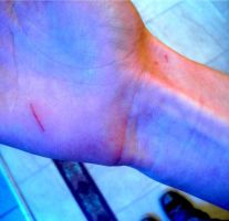 the kitten scratched my hand by Din0saur