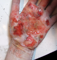 2nd Degree Burn by PlaceboFX