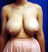 Amazing perfect breasts by hugegorgeousboobs