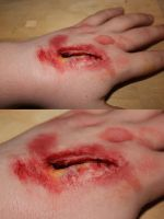 Hand Gash by metronewman