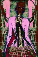 Spinal Infraction (2014) by Jon-Laurence