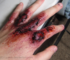 Abrasions by PlaceboFX