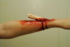 compound fracture 3. by wonderbandalice