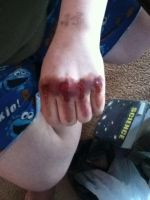 Sfx bloody knuckles by Amber-L-Waite