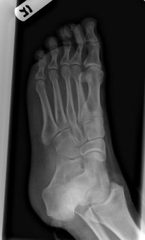 Right Foot X-Ray 2 of 3 by dull-stock