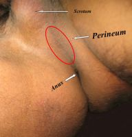 Male Perineum Tendon by Manfruit