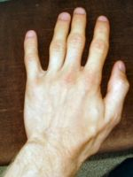 My hands, 1 of 4, front + back by DanBoldy