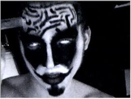 Brain Surgery by imgod5552666
