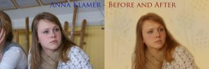 Anna Klamer - Before and After by Penpics
