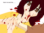 Me Got Hurt By Mark by TsubasaEagle123
