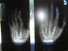 X-ray of my hand by 101boy
