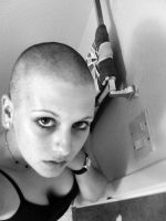 the girl without hair by la-tigresa